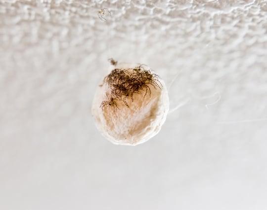虫の卵が<strong>孵化</strong>する夢
