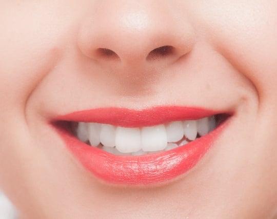 白く美しい健康な歯の夢