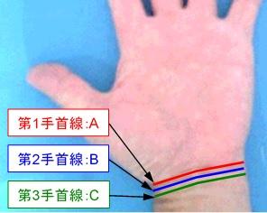 手首線の本数の選択